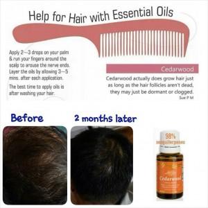 Cedarwood hair growth